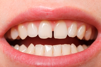 Teeth Straightening: Don't Do it Yourself | University of Utah Health