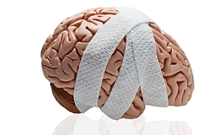 Early Brain Changes May Help Predict >> Concussions How They Can Affect You Now And Later University Of