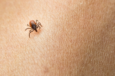 ticks in utah map Stay Tick Free This Summer University Of Utah Health