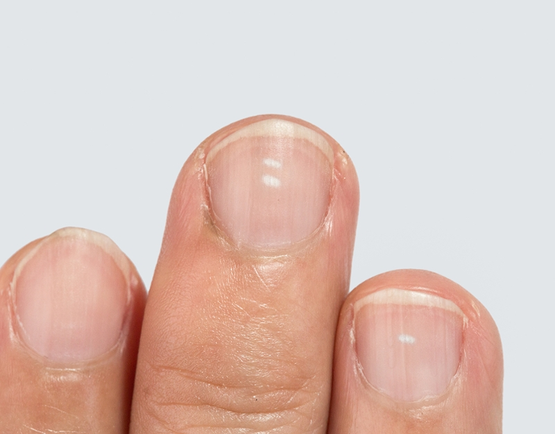 Nail Discoloration What To Do When To Worry University Of Utah