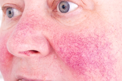 Taking The Red Out Treating Rosacea University Of Utah Health