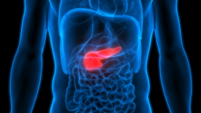 pancreatic cancer why so deadly)