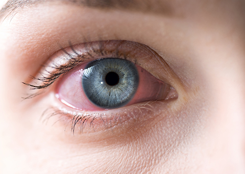 Is Pink Eye a Symptom of COVID-19?