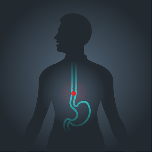 Five Things to Know About Esophageal Cancer