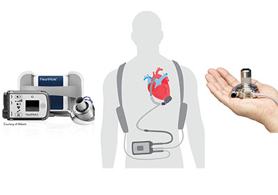 Empowering Rural Doctors to Treat Advanced Heart Failure Improves Patient Outcomes
