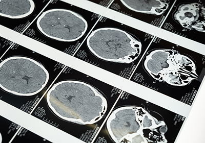 Study Reveals Unexpected Protective Role for Brain Swelling After Injury